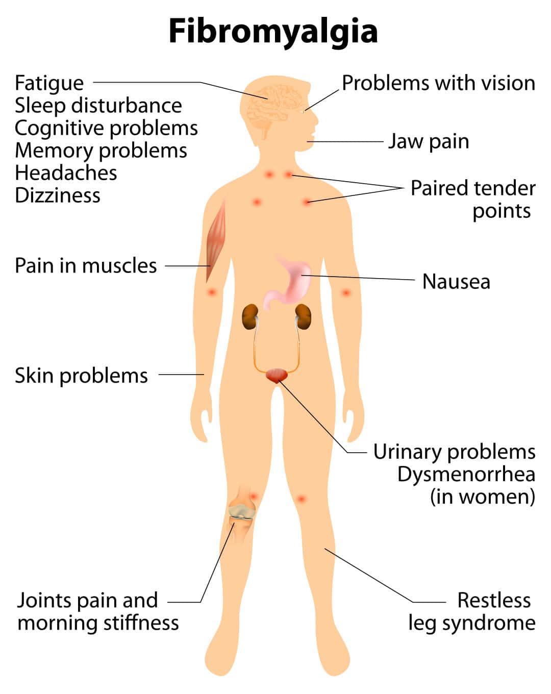 The symptoms of Fibromyalgia.