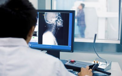 Degenerative Disk Disease: Symptoms, Causes, Treatments